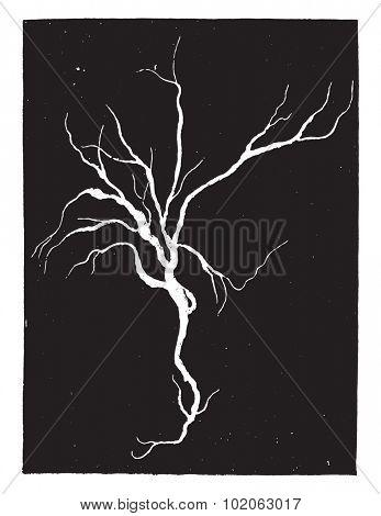 Fibrinous cast from the bronchi, case of croupous pneumonia, vintage engraved illustration.