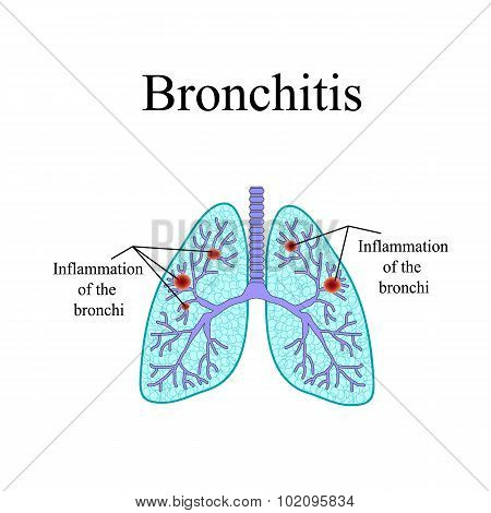 Bronchitis. The anatomical structure of the human lung. Vector illustration on isolated background