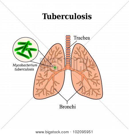 Tuberculosis. Lung disease. Tubercle bacillus. Vector illustration on isolated background
