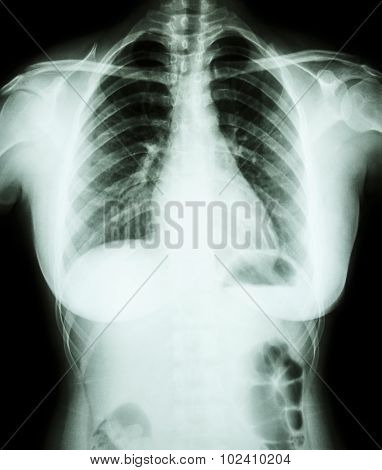 X-ray Asian Woman (thai People)