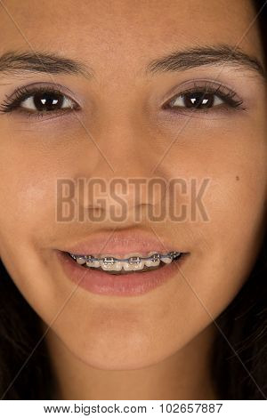 Cute Hispanic Teen Girl Wearing Braces On Her Teeth Smiling Close Up