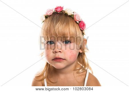 Girl With A Diathesis, Wreath  On Her Head On A White Background