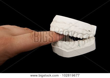 Plaster jaw