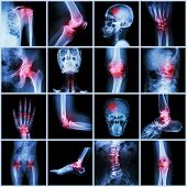 Постер, плакат: Collection Human Joint And Arthritis And Stroke