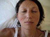 Alternative Medicine: Acupuncture Appointment