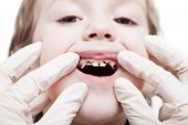 stock photo of gingivitis  - Dental medicine and healthcare  - JPG