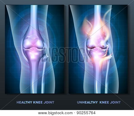 Normal Knee And Unhealthy Abstract Burning Knee Joint