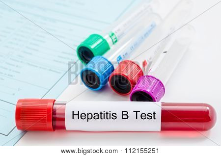 Blood Sample For Hepatitis B Virus (HBV) Testing.