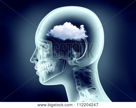 Xray Image Of Human Head With Clouds