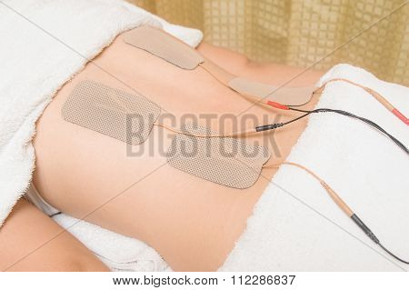 Tens Therapy, Electrodes Of Tens Device On Back Muscle