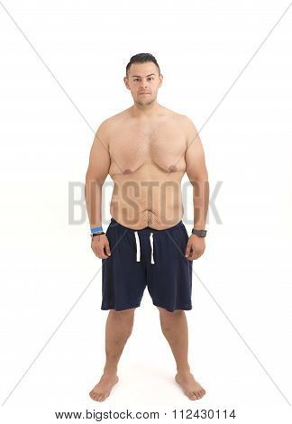 Young Man Who Lost Weight And Excess Skin Isolated On White