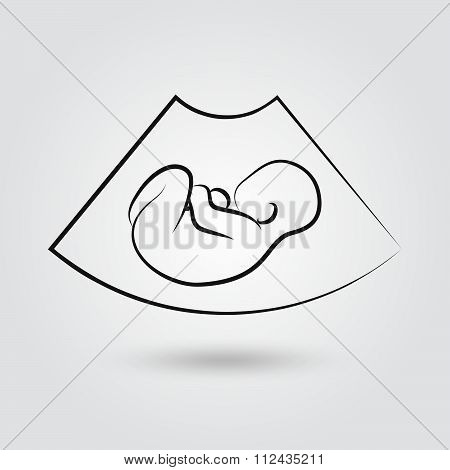 Ultrasonic Picture Of Unborn Baby