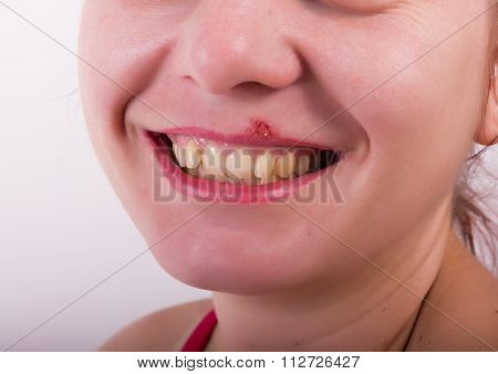 Girl lip diseased herpes. scabs on the stage of drying