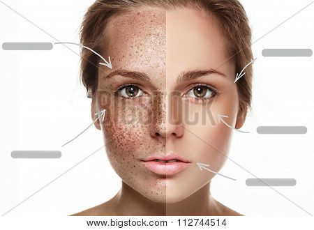 Woman Freckle Half-face Happy Young Beautiful Portrait With Healthy Skin Half