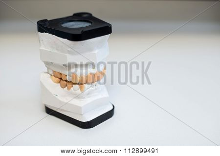 Dental Gypsum Models, Dentist's Office