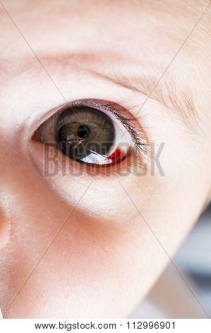 Red Bloddshot Eyes