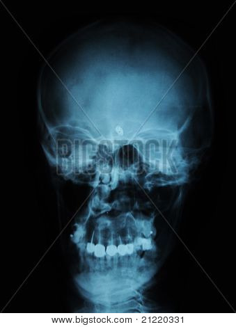 x-ray/ rtg of human head