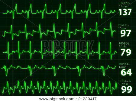 ECG graphh