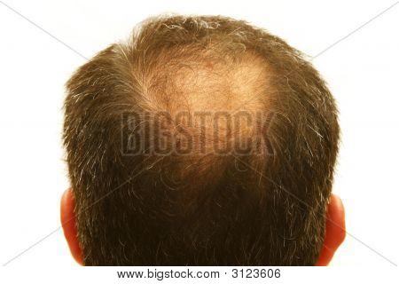 Balding Head