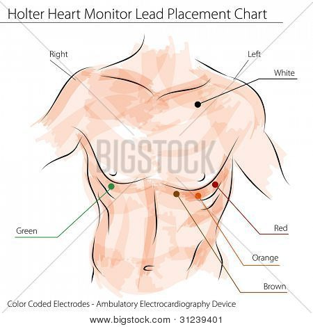 An image of a holter heart monitor lead placement chart.