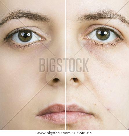Frau mit fleckigen Haut mit tiefen Poren und Mitesser und geheilten weiche Haut