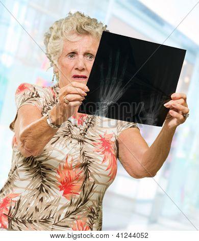 Sênior mulher segurando o relatório de raio X, ao ar livre