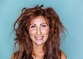 picture of alopecia  - smiling happy woman with crazy hair - JPG