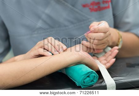 Open Radial Artery For Arterial Line Monitor