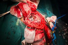 image of frontal lobe  - Craniectomy In Case Of Brain Tumor At Frontal Lobe - JPG