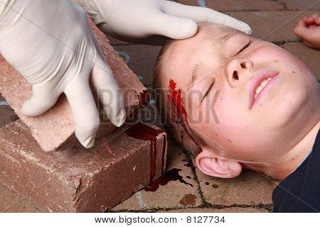 Boy With Head Injury