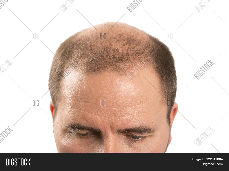 Лысая причёска у мужчин