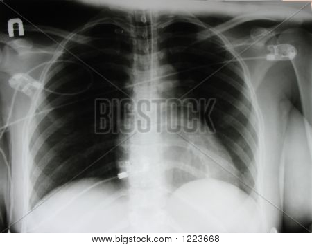 eine Ärztin eine Brust