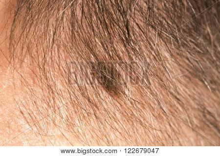 Melanoma angioma beauty mark spot on man head face France