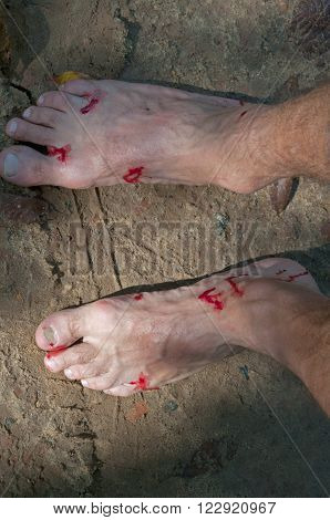 Man's bloody feet close-up. Leech bite after-effect.