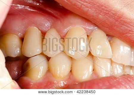 Pressed Ceramic Teeth In Oral Cavity