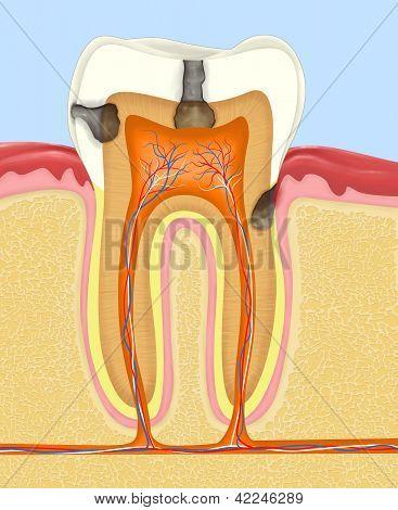 carious human tooth