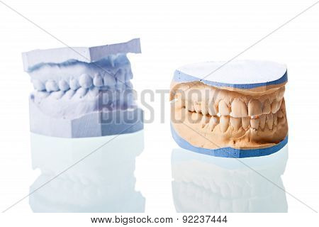 Cast Tooth