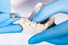picture of false teeth  - Dental mold of a set of false teeth with dental tools - JPG