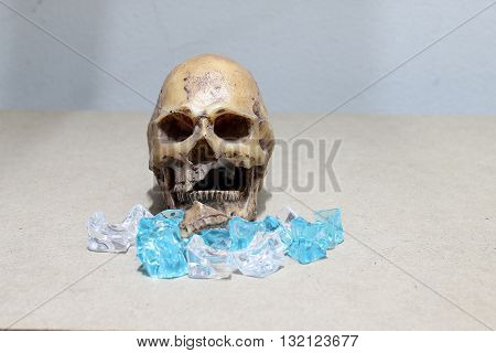 Decayed Teeth Human Skull With Candy On Wood Background. Like A People Eating Candy Too Much.