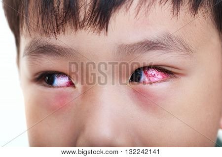 Closeup Of Chronic Conjunctivitis With A Red Iris.
