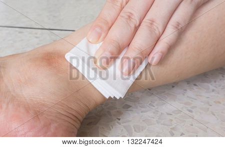 Hand of woman is pressing gauze bandage on leg to stop wound bleeding selective focus