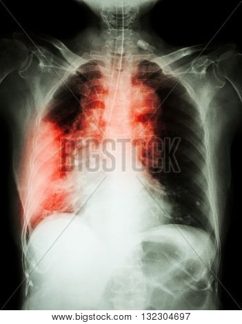 Lung cancer . Film chest x-ray show right lung mass wide mediastinum pneumonia and right pleural effusion