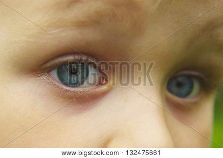 Child boy's blue eye close-up. Kids emotion. Outdoor