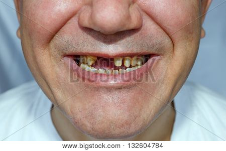 Men With Peeled Teeth