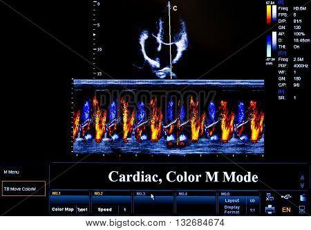 Colourful Ultrasound Monitor Image. Cardiac