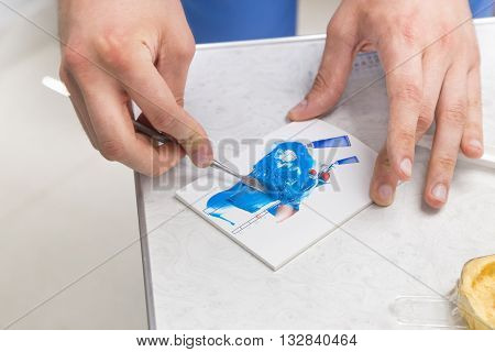 Dentist's hands mixing blue silicone impression material on a special mixing pad in a dental clinic