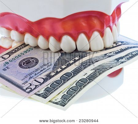 Tooth model with dollar bills