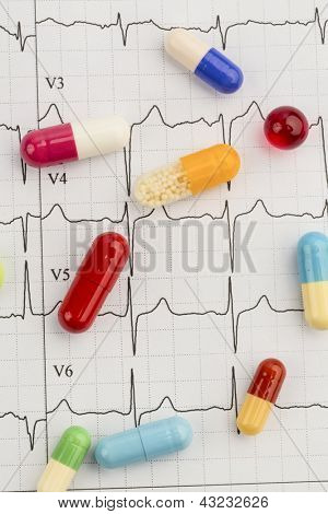 several tablets are on an ekg. symbolic photo for diseases of the cardiovascular system