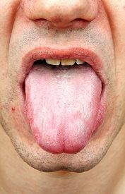 picture of syphilis  - Bacterial infection disease tongue in a man - JPG