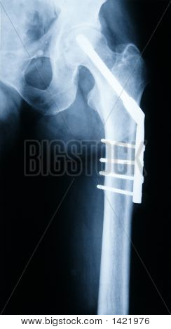 X-Ray Of A Hip